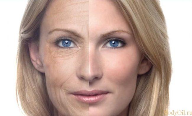 Лицо после 30